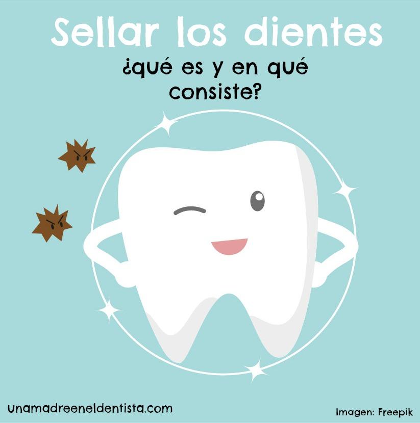 Sellar los dientes ¿qué es y para qué sirve?