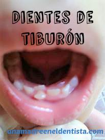 ¿Qué son los dientes de tiburón en los niños?