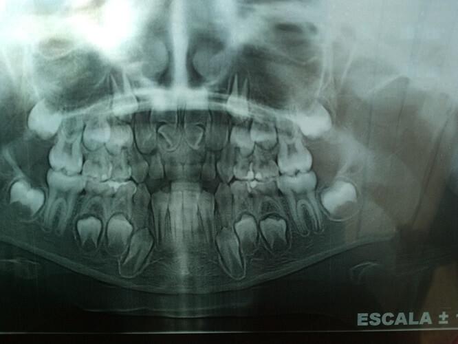 Dientes supernumerarios: más dientes de lo normal