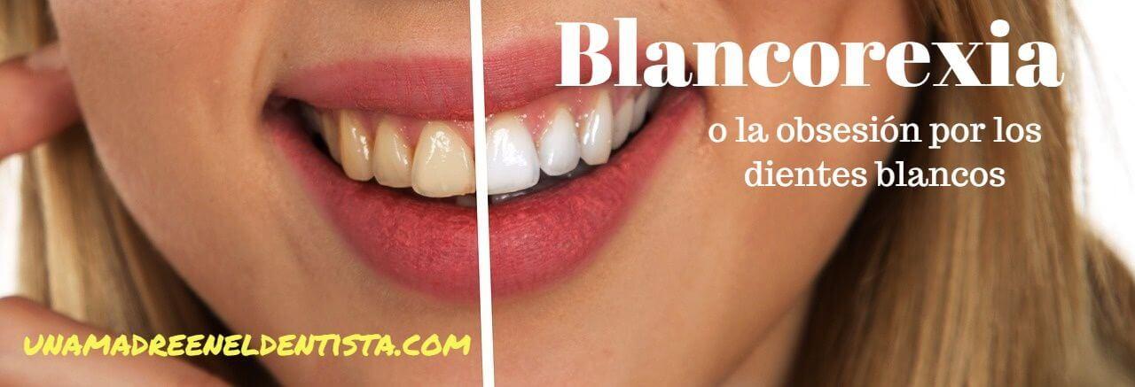 Blancorexia o la obsesión por los dientes blancos