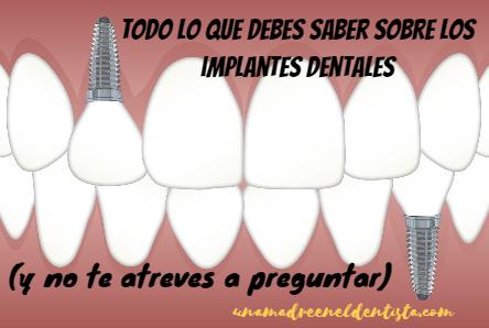 Todo lo que debes saber sobre los implantes dentales