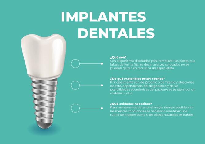 Averigua cuáles son las ventajas de las prótesis dentales fijas