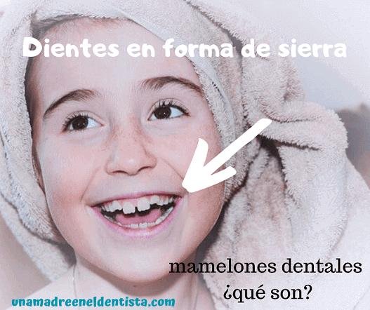 Dientes en forma de sierra: mamelones dentales