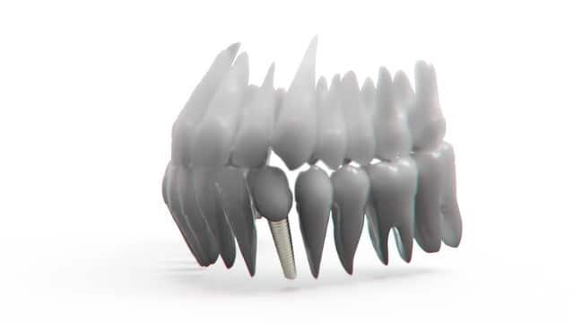 implantes dentales se pueden poner en un día
