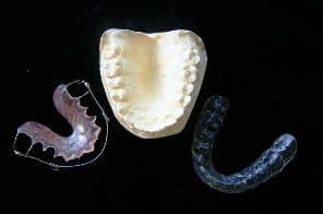 aparatos ortodoncia